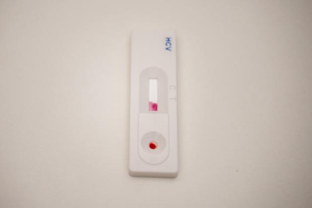 Jornada de test rápido de Hepatitis C